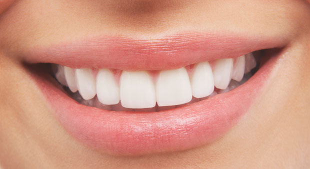 white-teeth-at-home